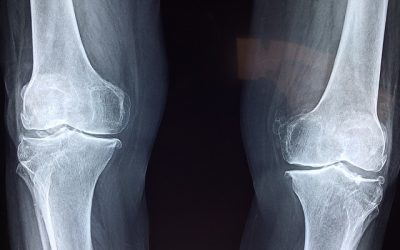 Understanding Joint Injections for Arthritis