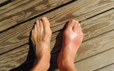 Gout Symptoms And Treatments