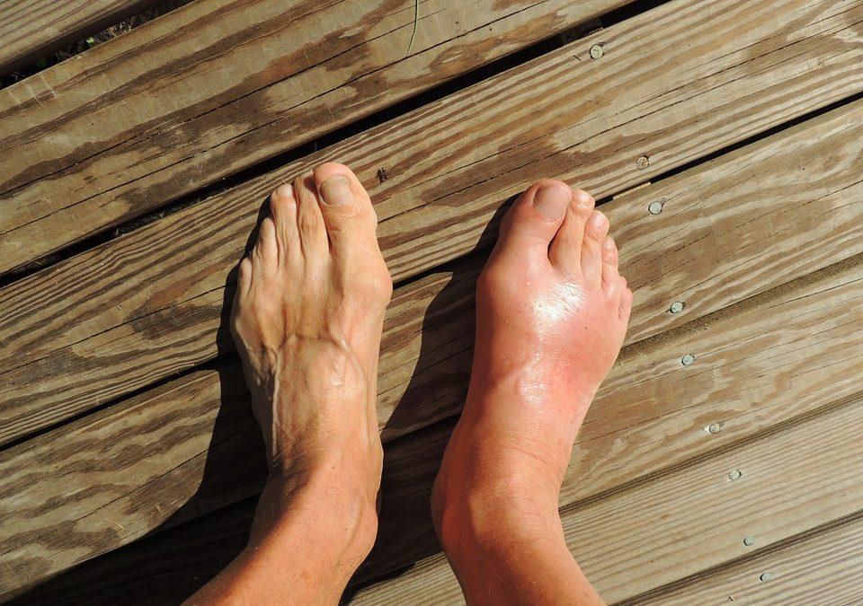 Gout  – Treating, Relieving and Preventing the Problem of Gout